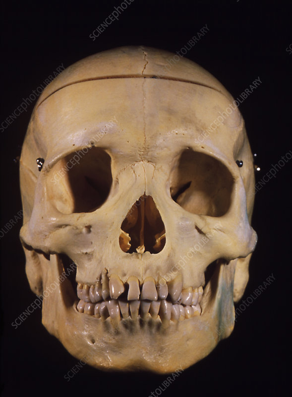 Complete human skull & lower jaw - front view