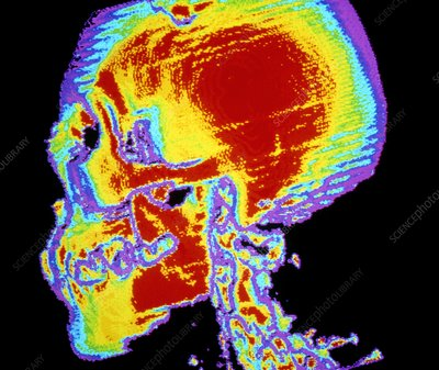 False-colour CT scan: profile normal human skull