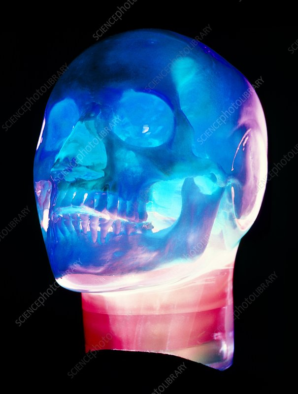 Human skull encased in plastic 'head'