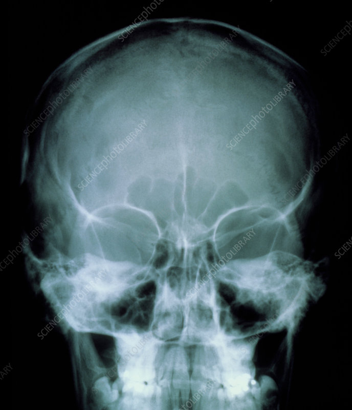 X-ray of the skull front view