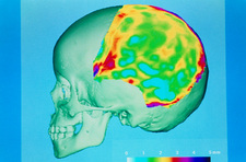 3-D CT scan of human skull showing bone thickness