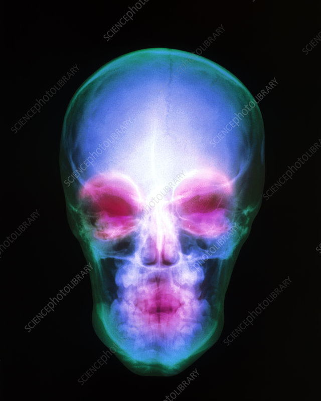 Coloured X-ray of the human skull