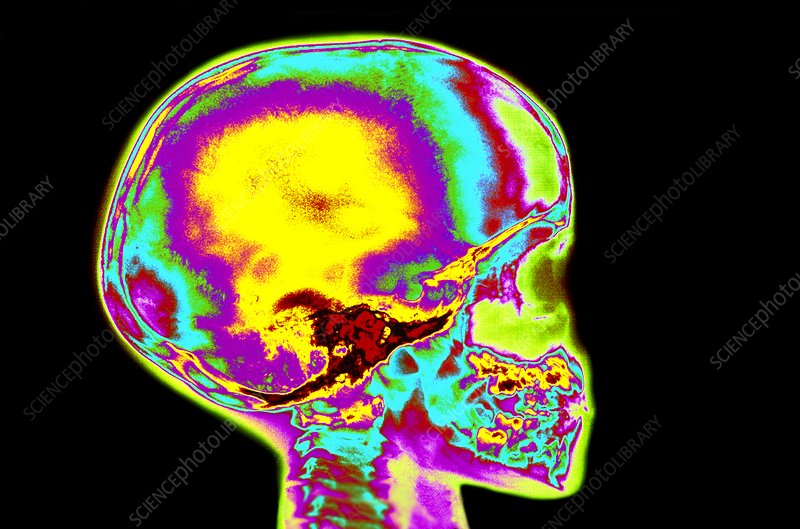 Coloured X-ray of child's skull and tooth eruption