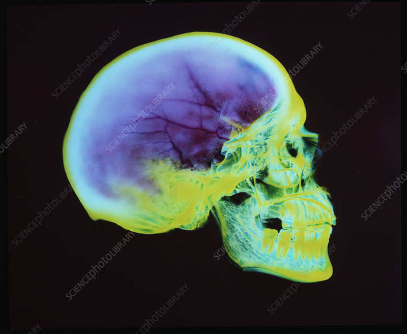 Coloured X-ray of a human skull (Roman period)