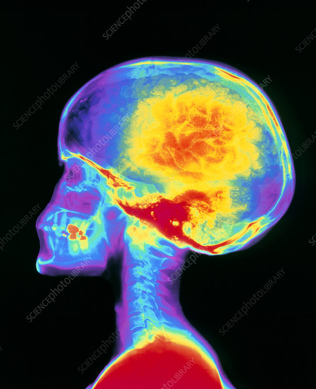 Coloured X-ray of human skull, brain superimposed