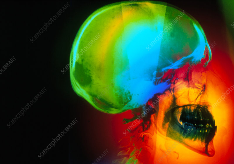 Coloured X-ray of a skull