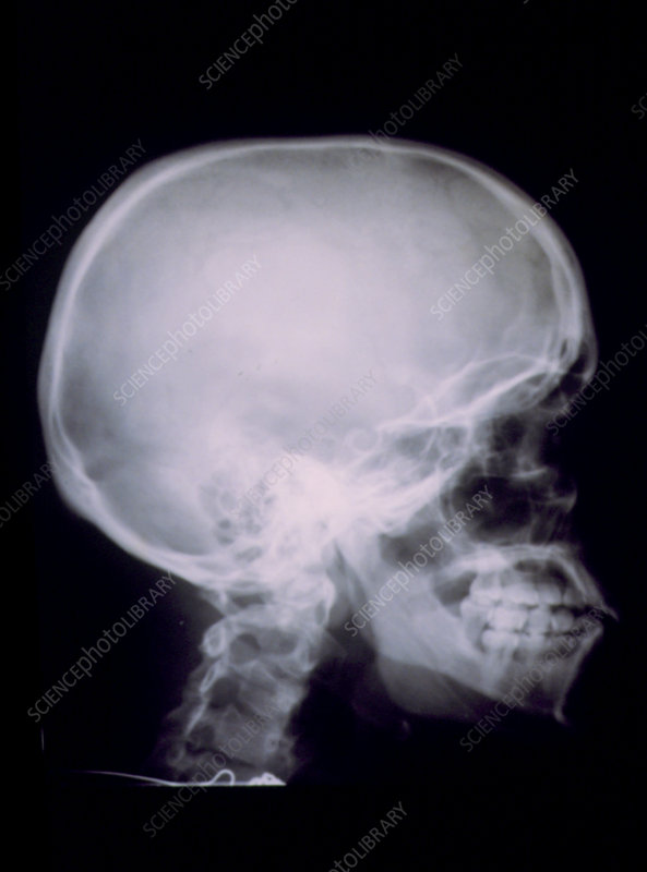 X-ray of a human skull seen from the side