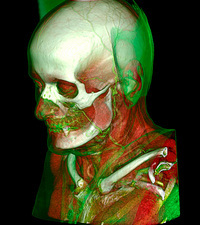 Human head and neck, CT scan