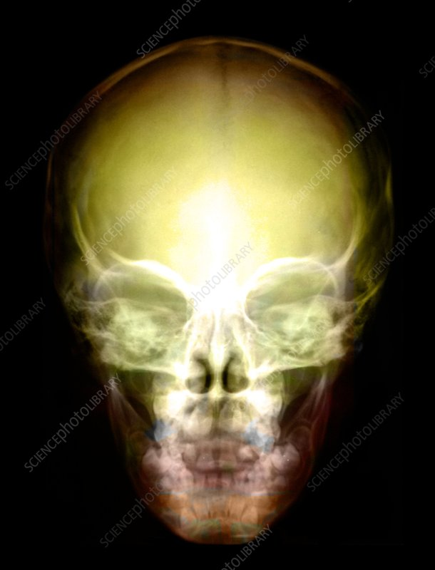 Young child's skull, X-ray