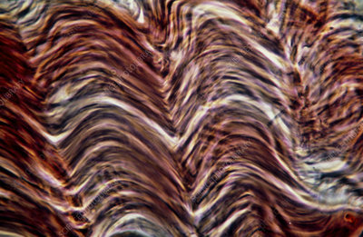 Light micrograph of smooth muscle tissue