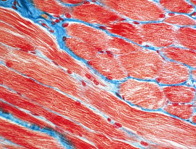LM of striated muscle from human uvula