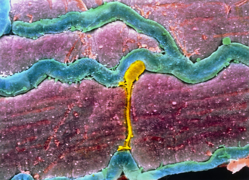 False-colour SEM of skeletal muscle & a capillary