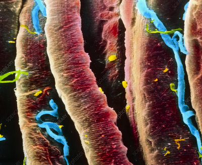 False-colour SEM of skeletal muscle fibres