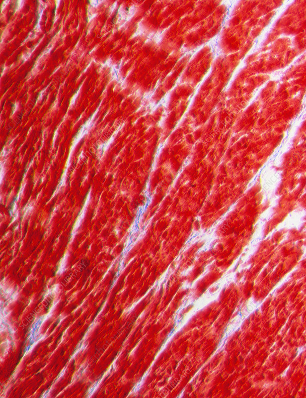 Light micrograph of normal heart (cardiac) muscle