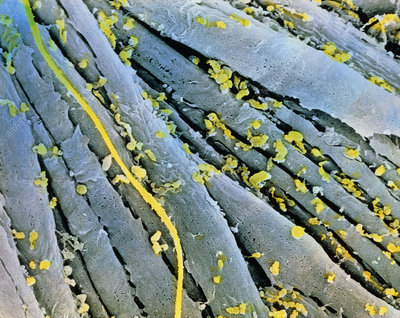 Coloured SEM of smooth muscle in human oviduct