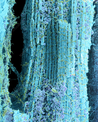 Coloured SEM of healthy heart muscle fibres
