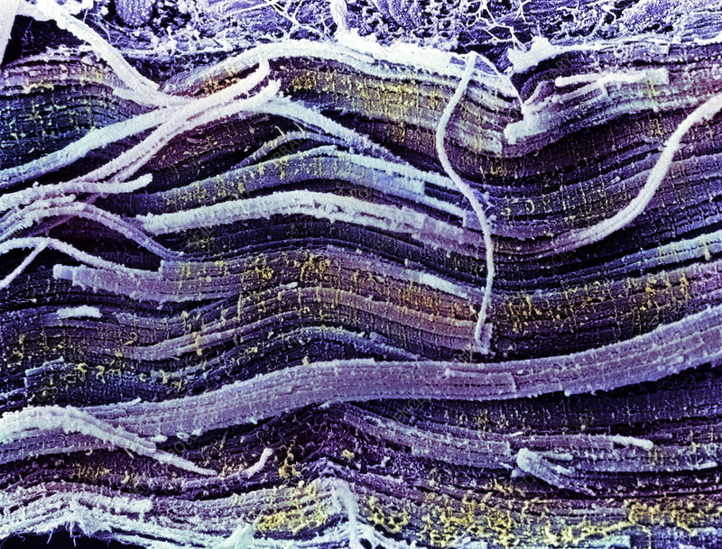 Coloured SEM of skeletal (striated) muscle fibres