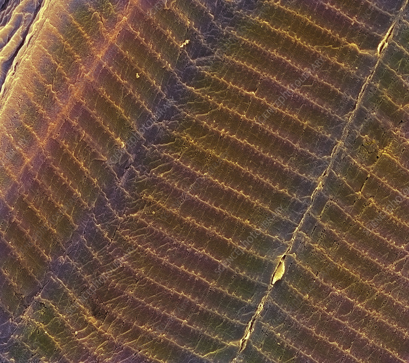 Striated muscle, SEM