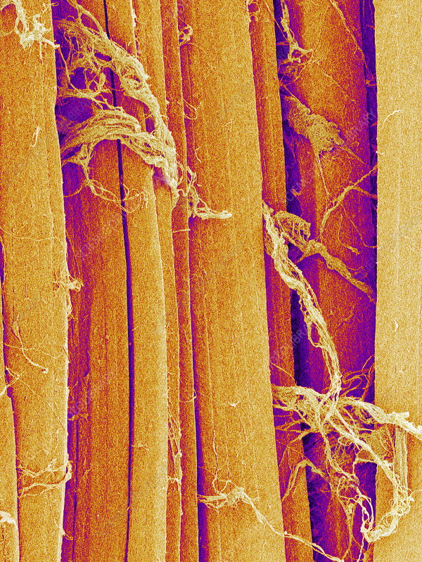 Skeletal muscle fibre