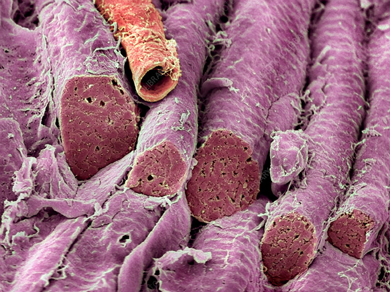 Smooth muscle, SEM
