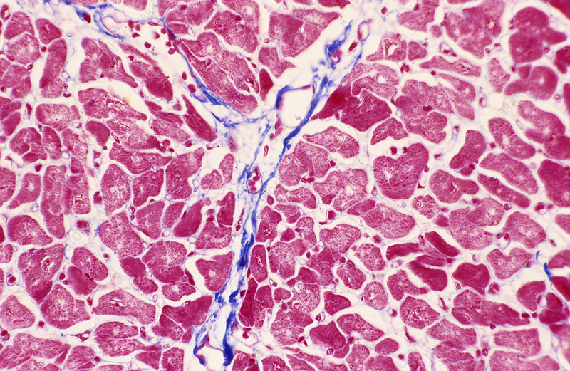 Heart muscle, light micrograph