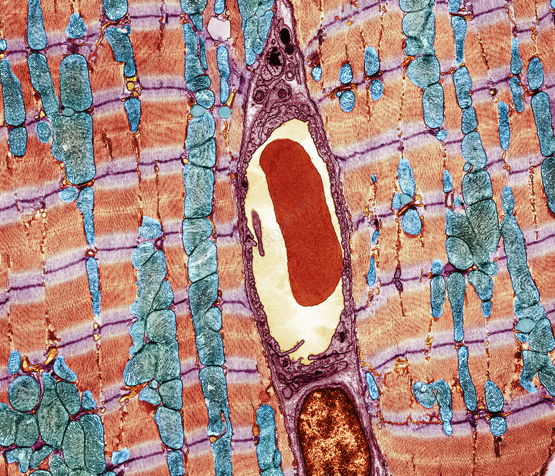 Cardiac muscle and capillary, TEM