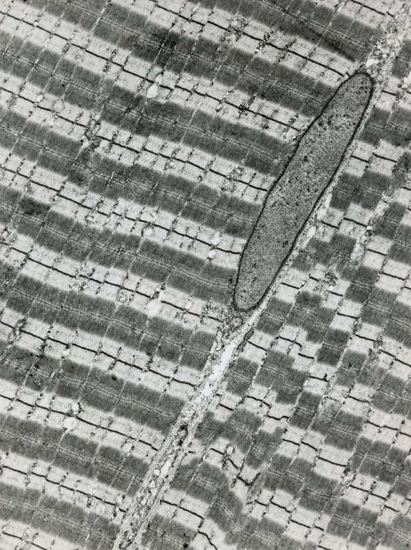 TEM showing two striated muscle cells