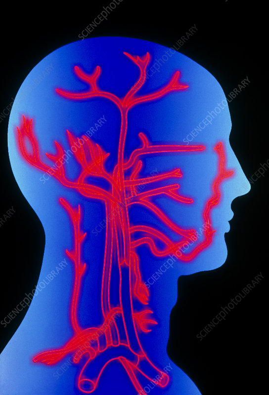 Computer graphic of head & neck, showing arteries