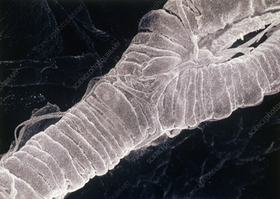 SEM of exterior of human branching arteriole