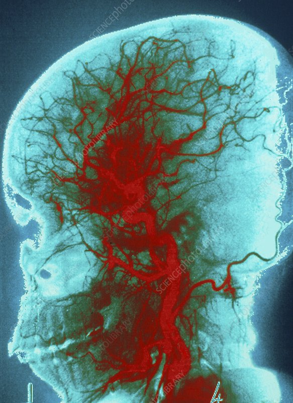 Digitised angiogram of carotid artery of the head