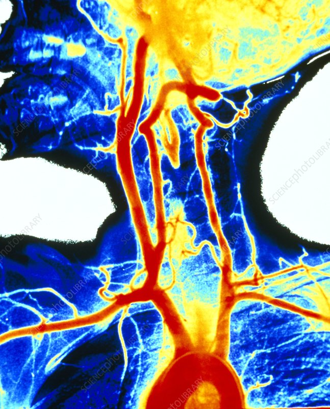 Coloured angiogram of carotid arteries