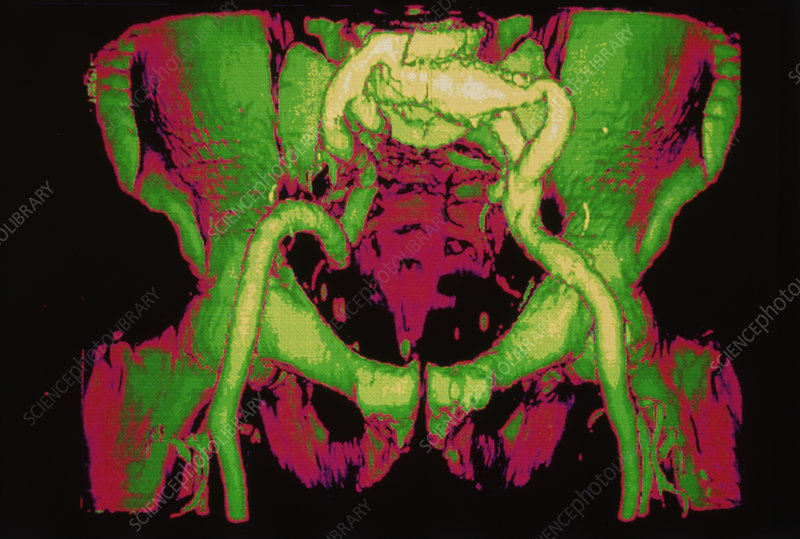 3-D CT scan of major arteries in pelvis