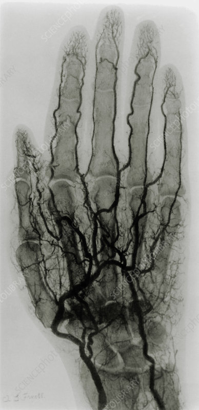 Early X-ray arteriogram of a human hand, 1904