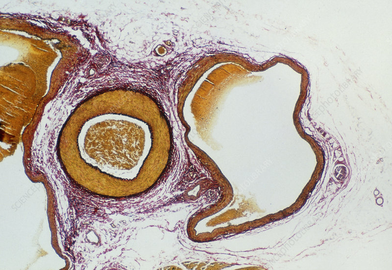 LM of a cross-section through an artery and vein