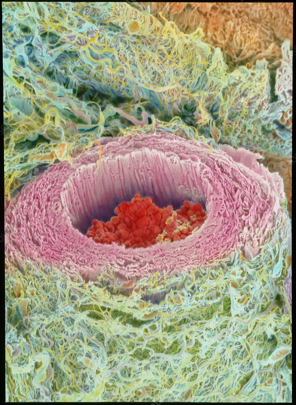 Coloured SEM of section through a human arteriole