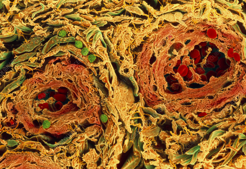 Coloured SEM of blood vessels in the skin