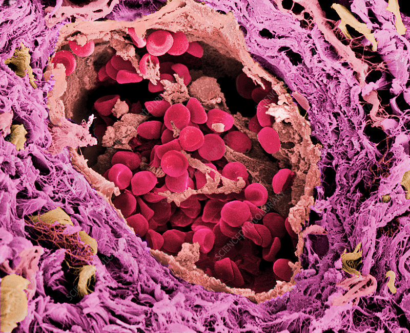 Coloured SEM of a blood vessel in the skin