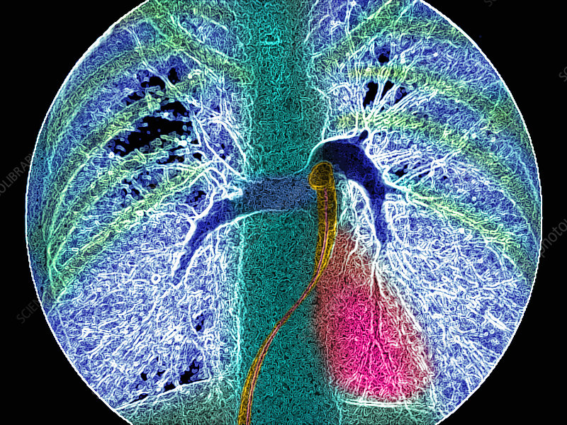 Coloured angiogram showing the pulmonary arteries