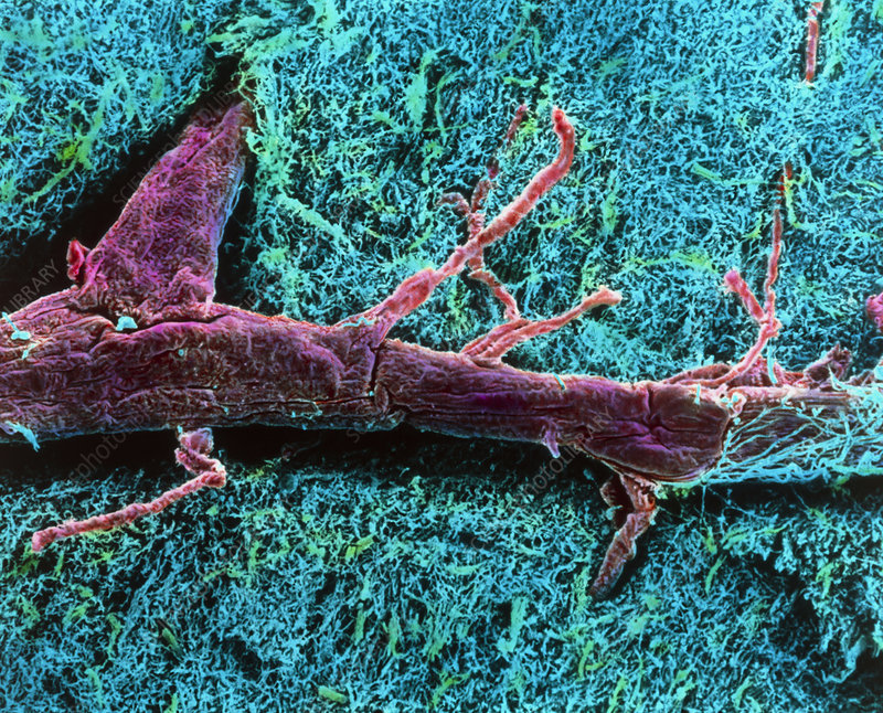 Coloured SEM of a blood vessel in the spinal cord