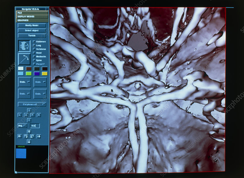 3-D CT scan of the circle of Willis blood vessels