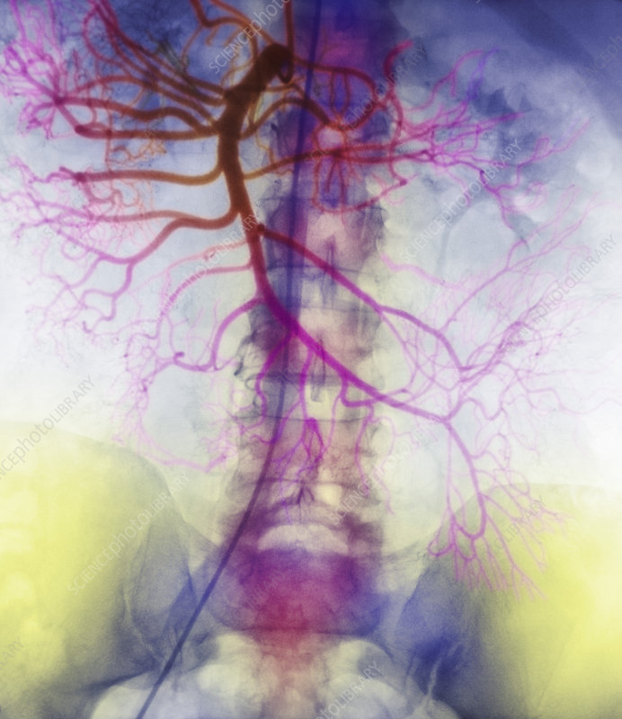 X-ray of arteries