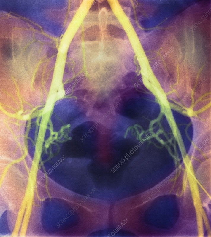 Coloured X-ray of iliac arteries to the pelvis