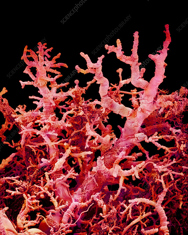 Blood vessels in a lung, SEM
