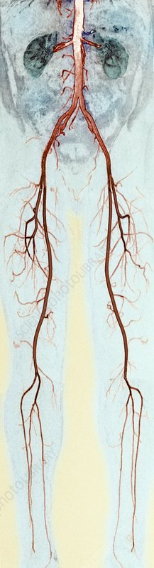 Leg and abdominal blood vessels, MRA scan