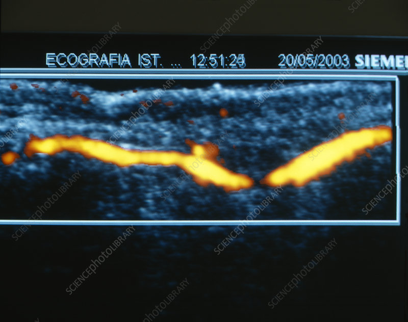 Finger blood flow, ultrasound scan