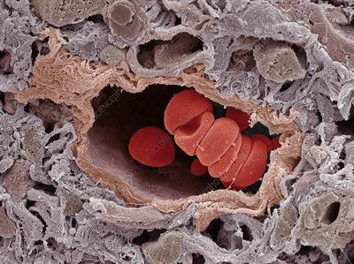 Arteriole and red blood cells, SEM