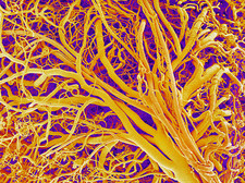 Blood vessels of a lymph node, SEM