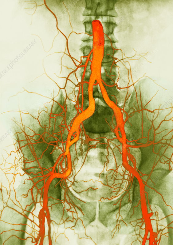 Abdominal arteries, X-ray