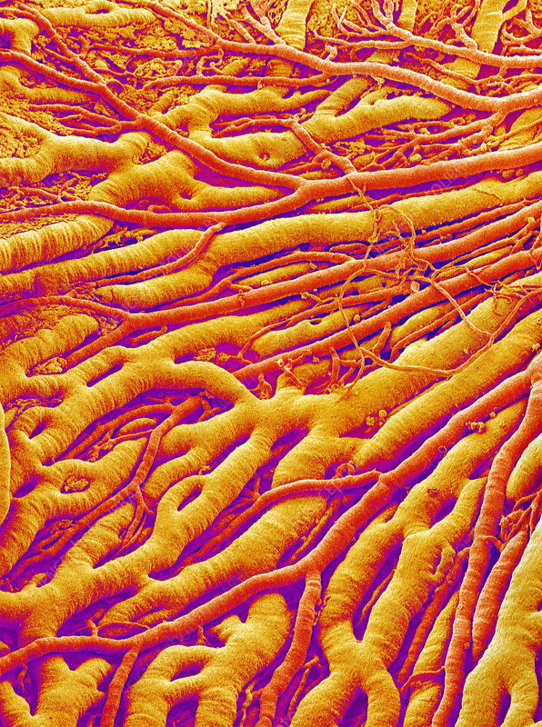 Blood vessels, SEM
