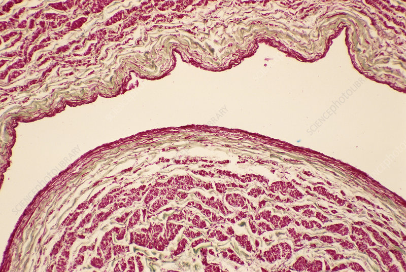 Vena cava, light micrograph